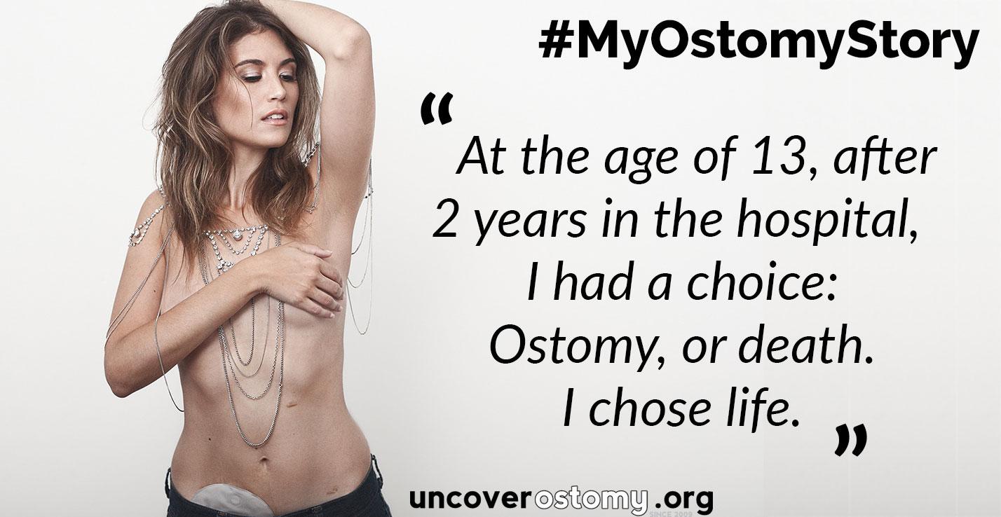 Uncover Ostomy WOD My-Ostomy Story FeaturedImage