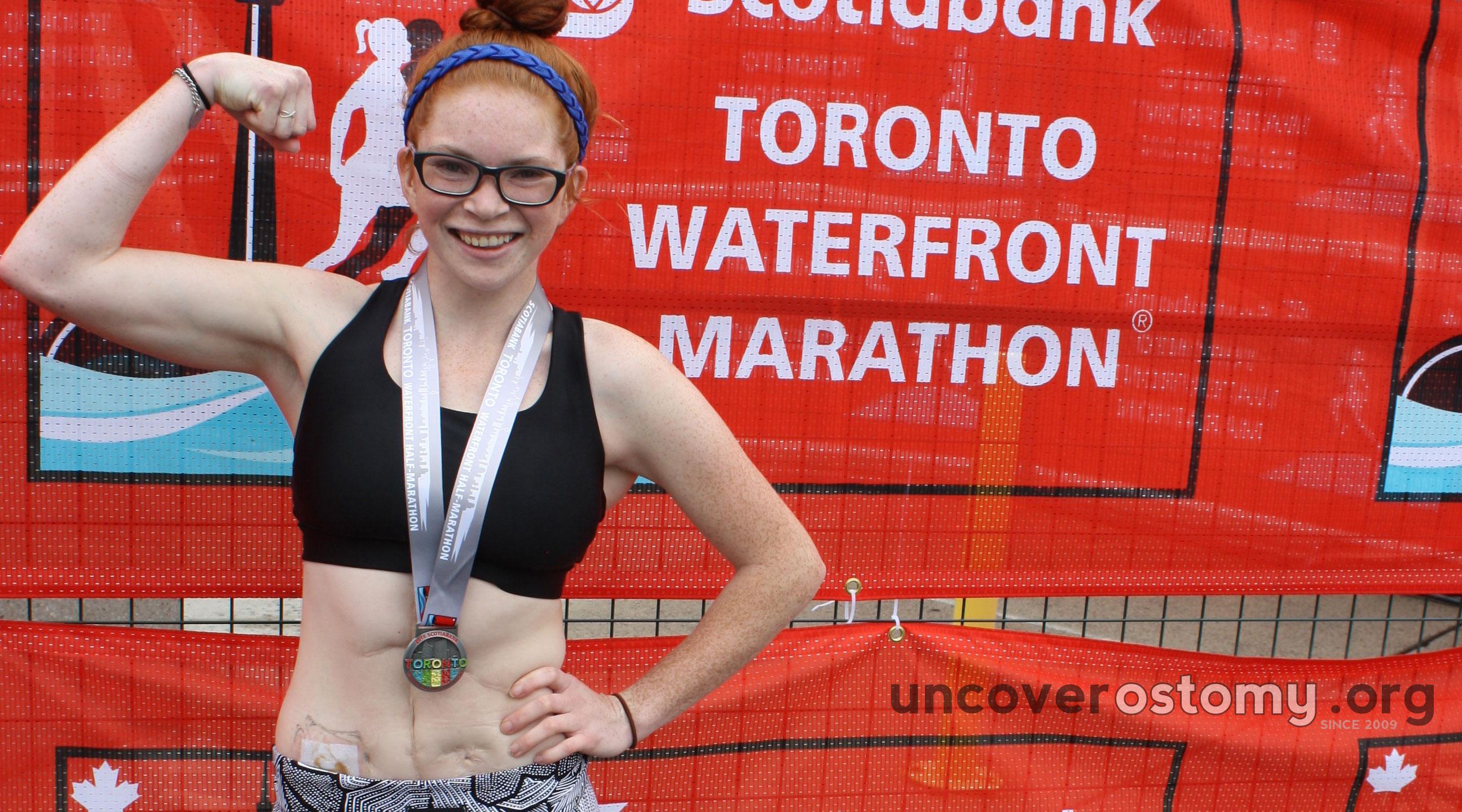 kaitlyn-uncover ostomy toronto marathon