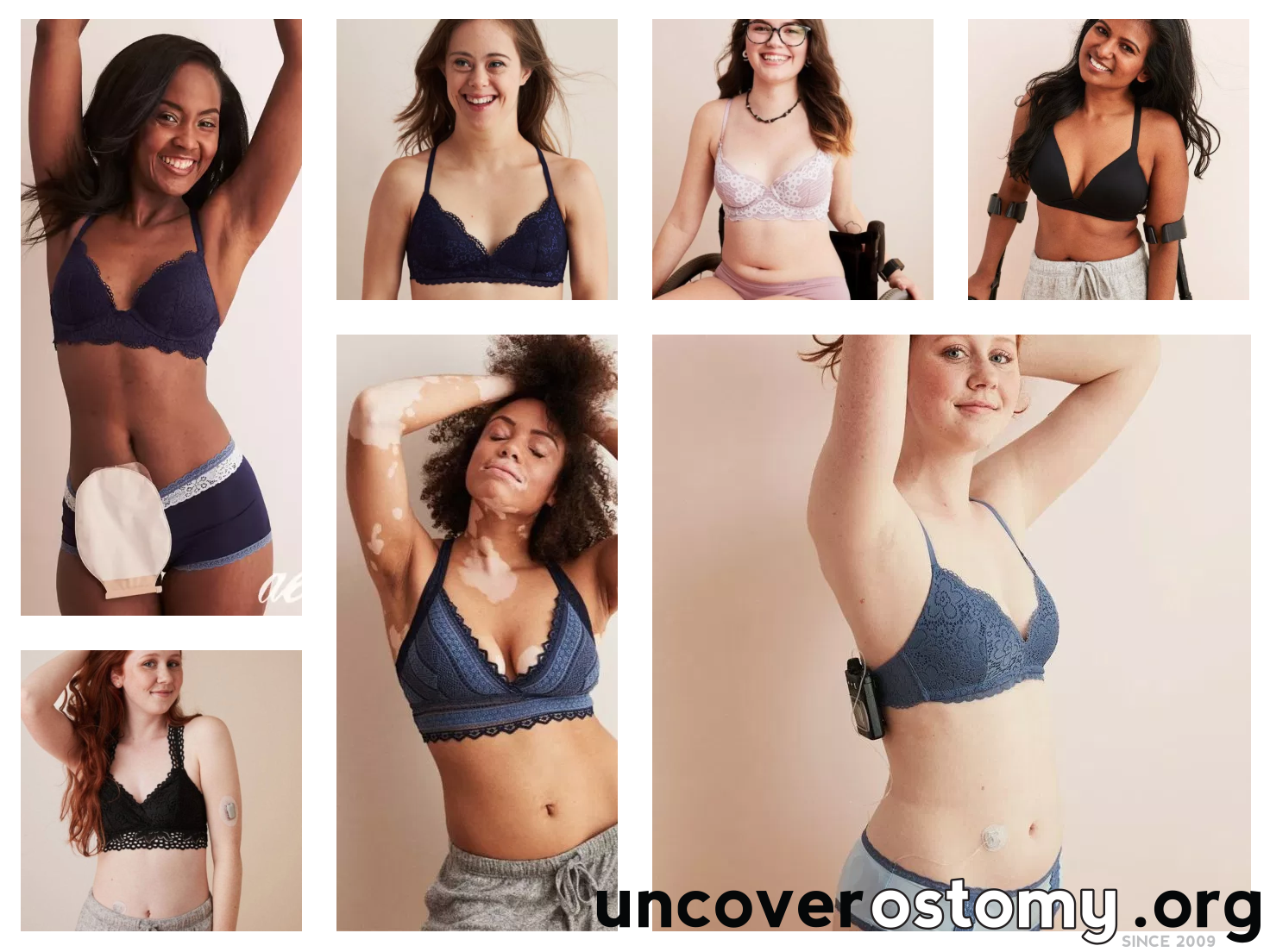 uncover-ostomy-awareness-arie-real-featured