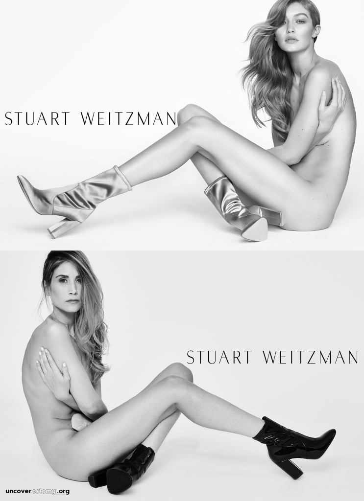Uncover-Ostomy-Jess-Grossman_SW-AND-Gigi-OVER-logox2000
