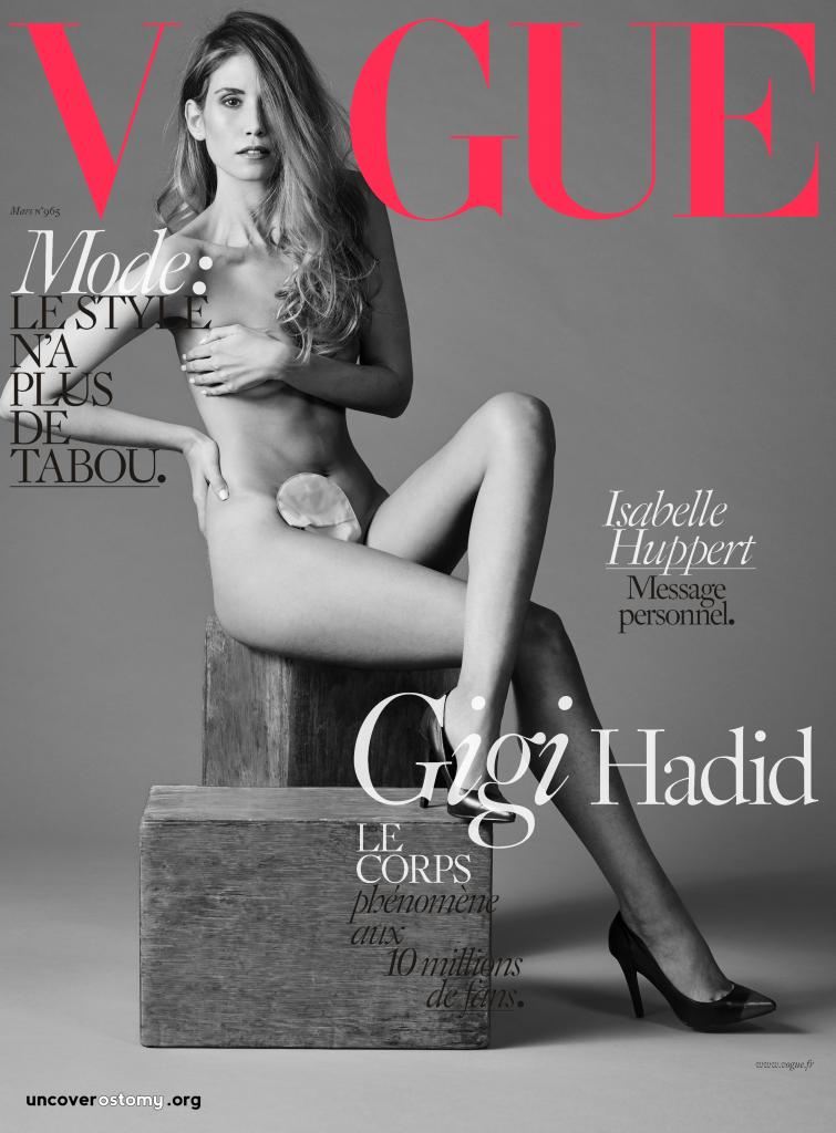 Uncover-Ostomy-Jess-Grossman_Vogue-Gigi-OVER-logo