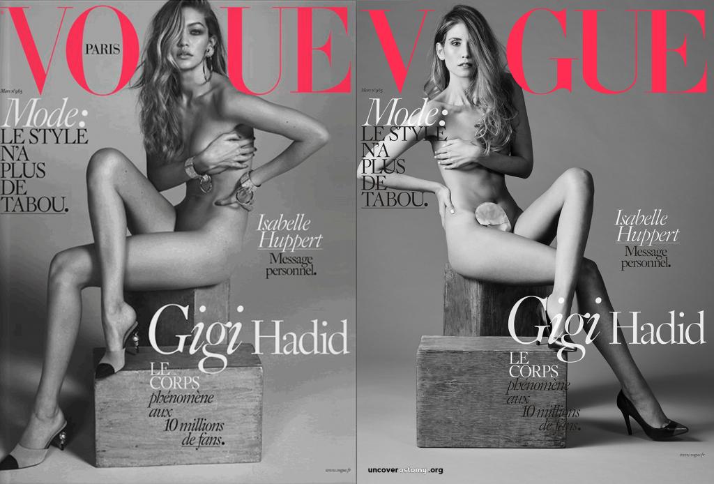 Uncover-Ostomy-Jess-Grossman_Vogue-and-Gigi-OVER-logox2000